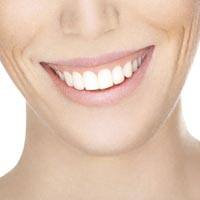 Gummy Smile fix at Mulgrave Dental Group Melbourne Australia-2