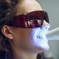 Teeth Whitening at Mulgrave Dental Group Melbourne Australia-2