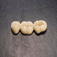 Dental Crown and Bridges made at Mulgrave Dental Group Melbourne Australia