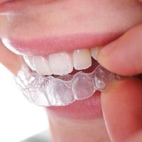 Orthodontics treatments by Mulgrave Dental Group Melbourne Australia