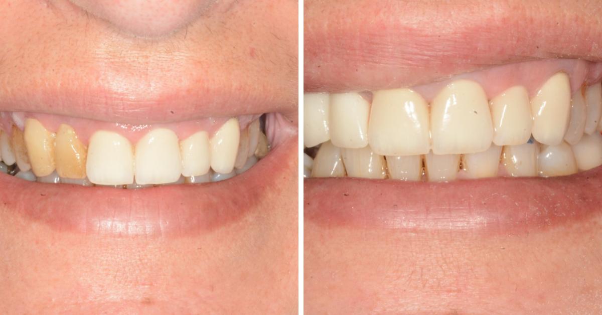 Dental Venners Mulgrave (1)