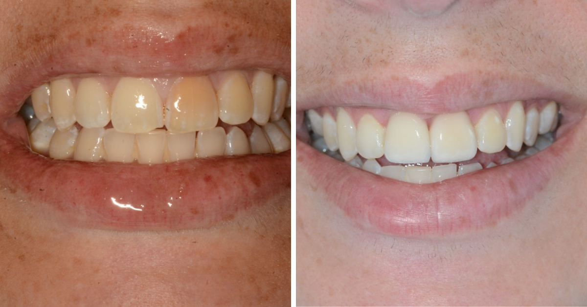 Dental Venners Mulgrave 1