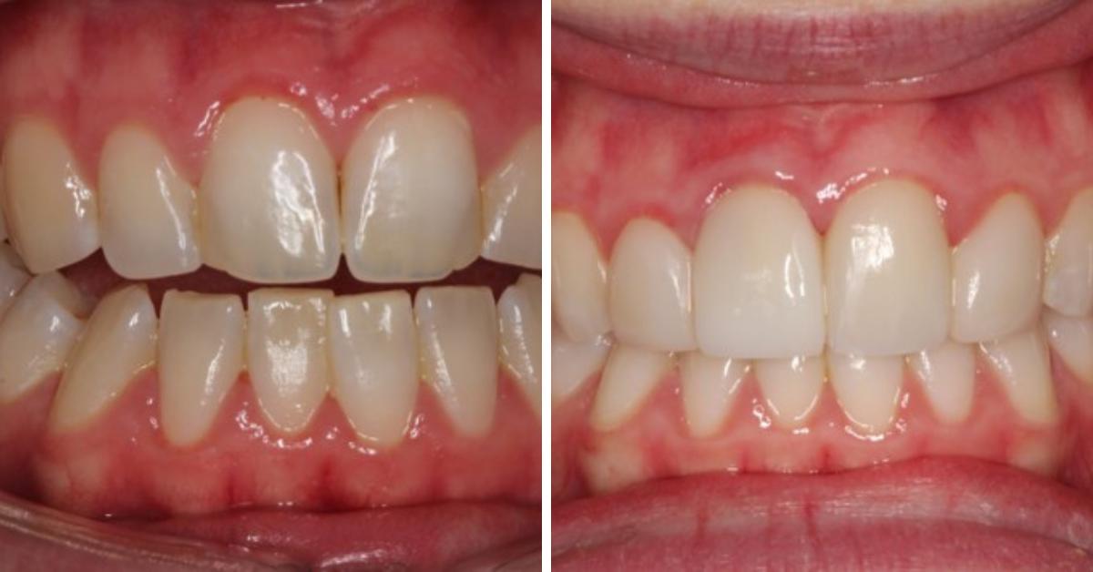 Dental Venners Mulgrave