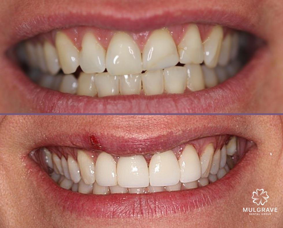 Dental Veneers Mulgrave Dental Group