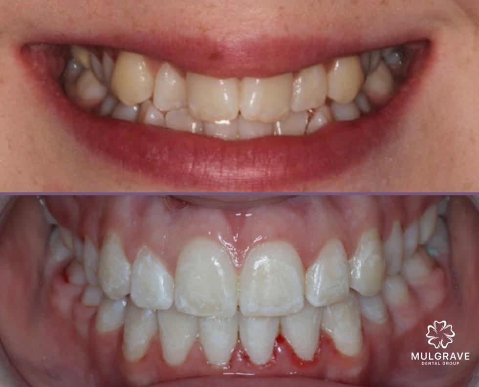 Orthodontics Result 01 Mulgrave Dental Group