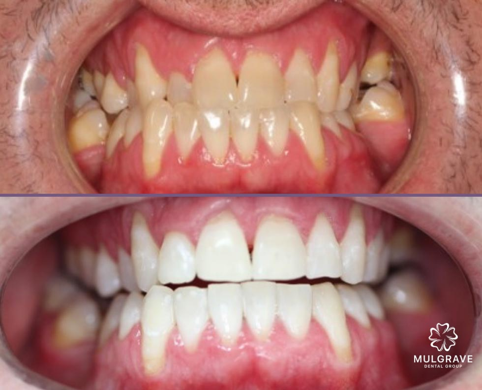 Orthodontics Results 02 Mulgrave Dental Group