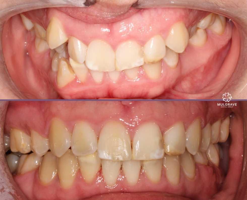 Braces by Mulgrave Dental Group Melbourne Australia
