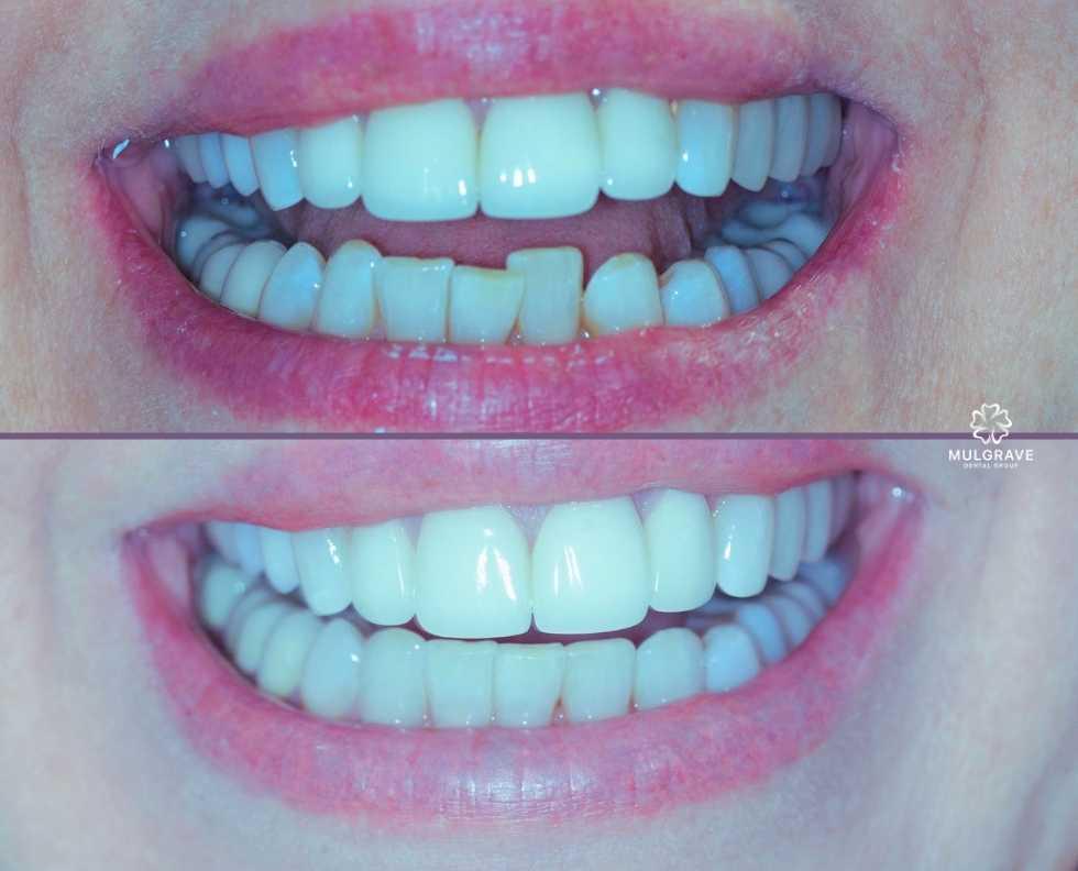 Clear aligner orthodontics by Mulgrave Dental Group Melbourne Australia