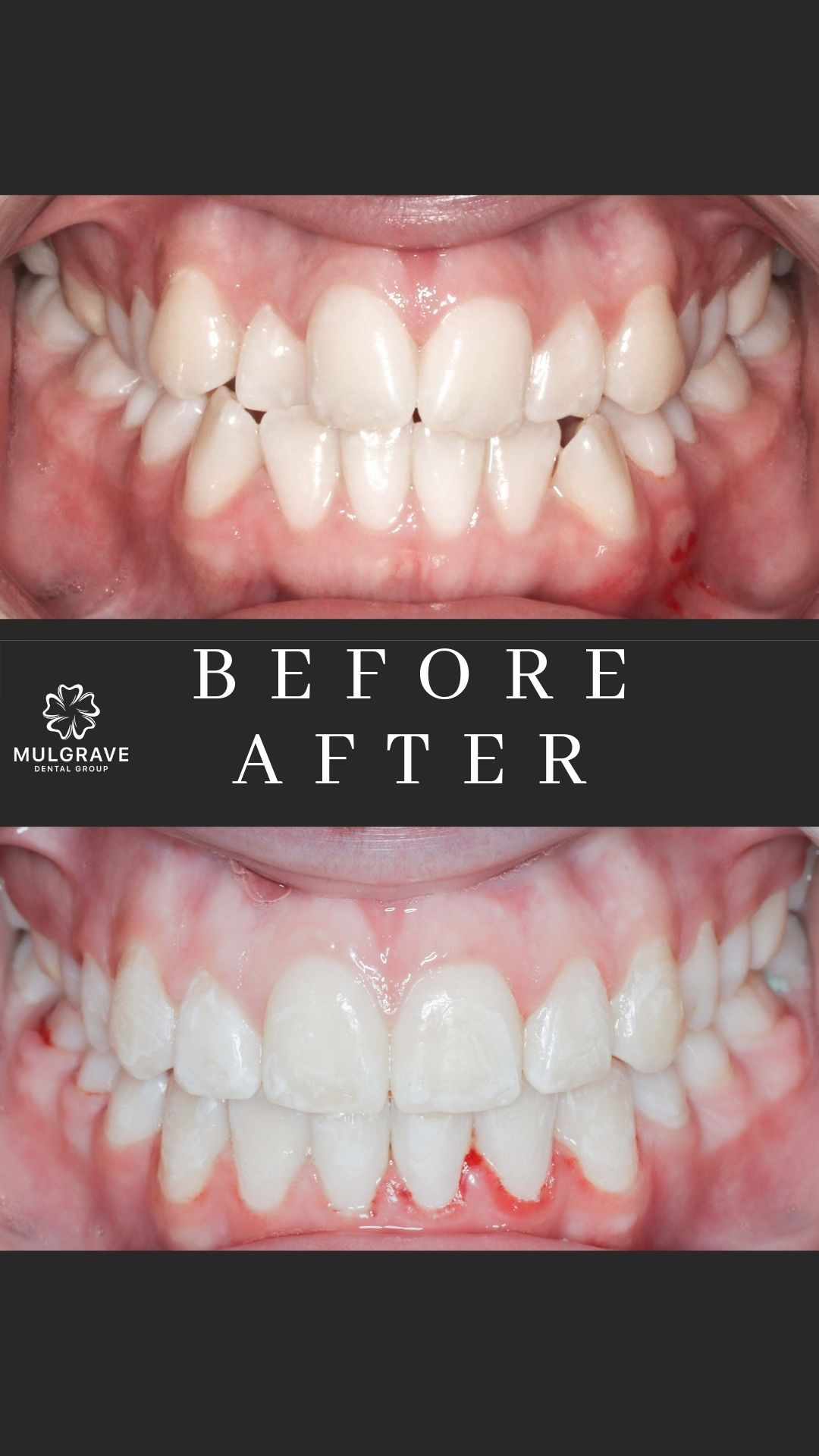 MDG Ortho Before After KAT002