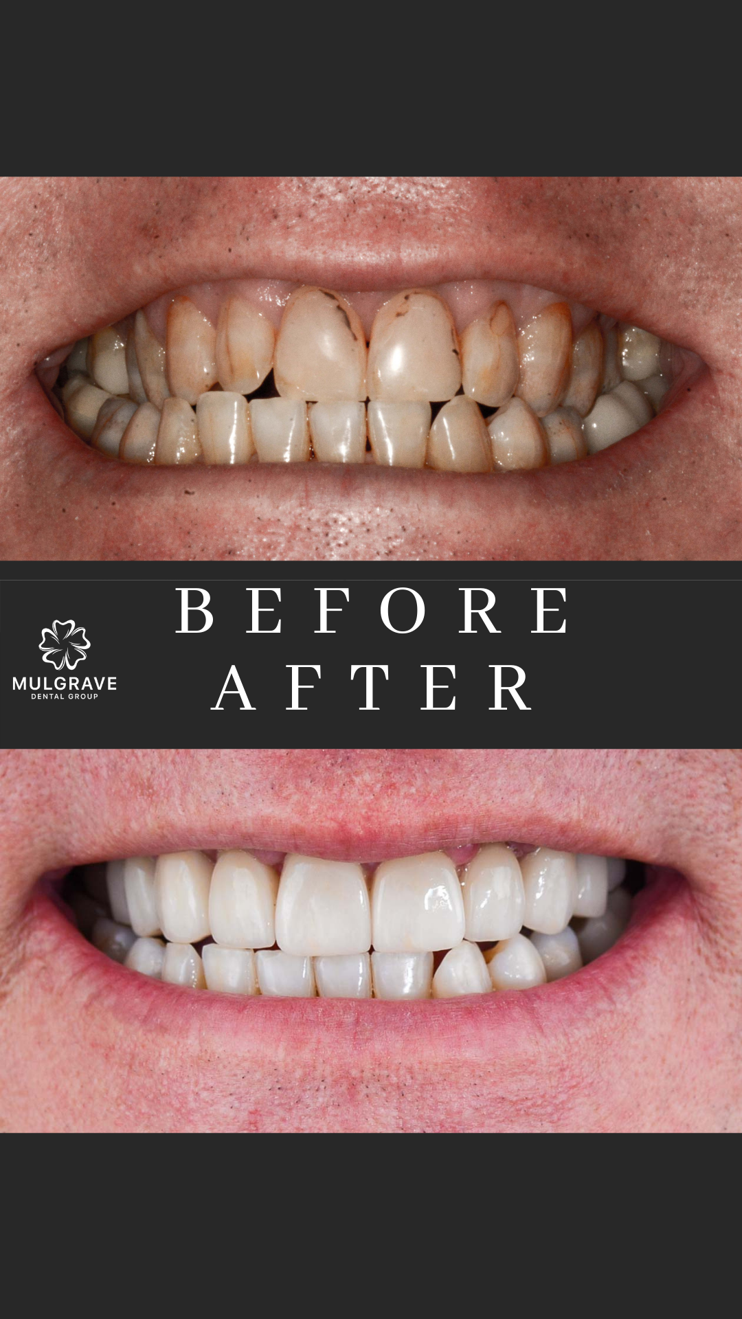 MDG Veneers Before and After BRE001