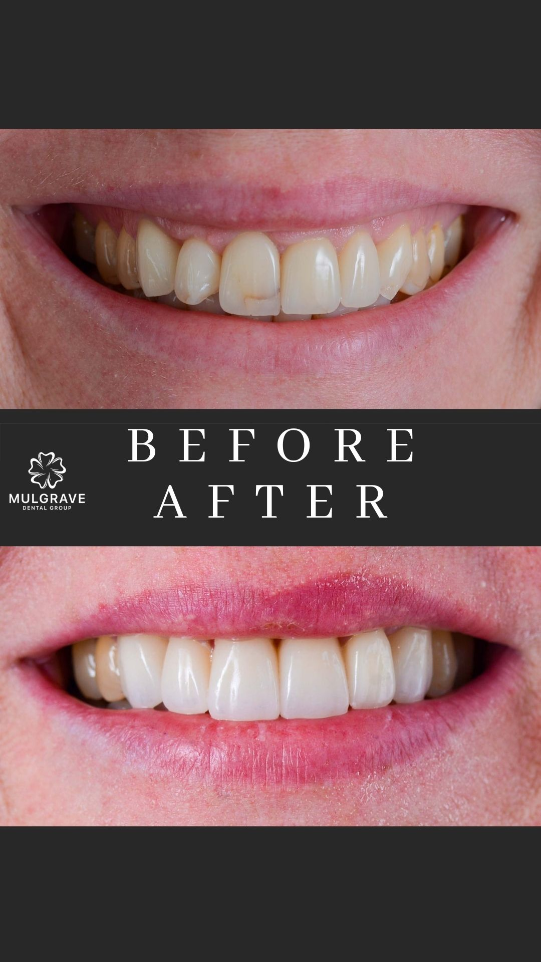 MDG Veneers Before and After RUT001