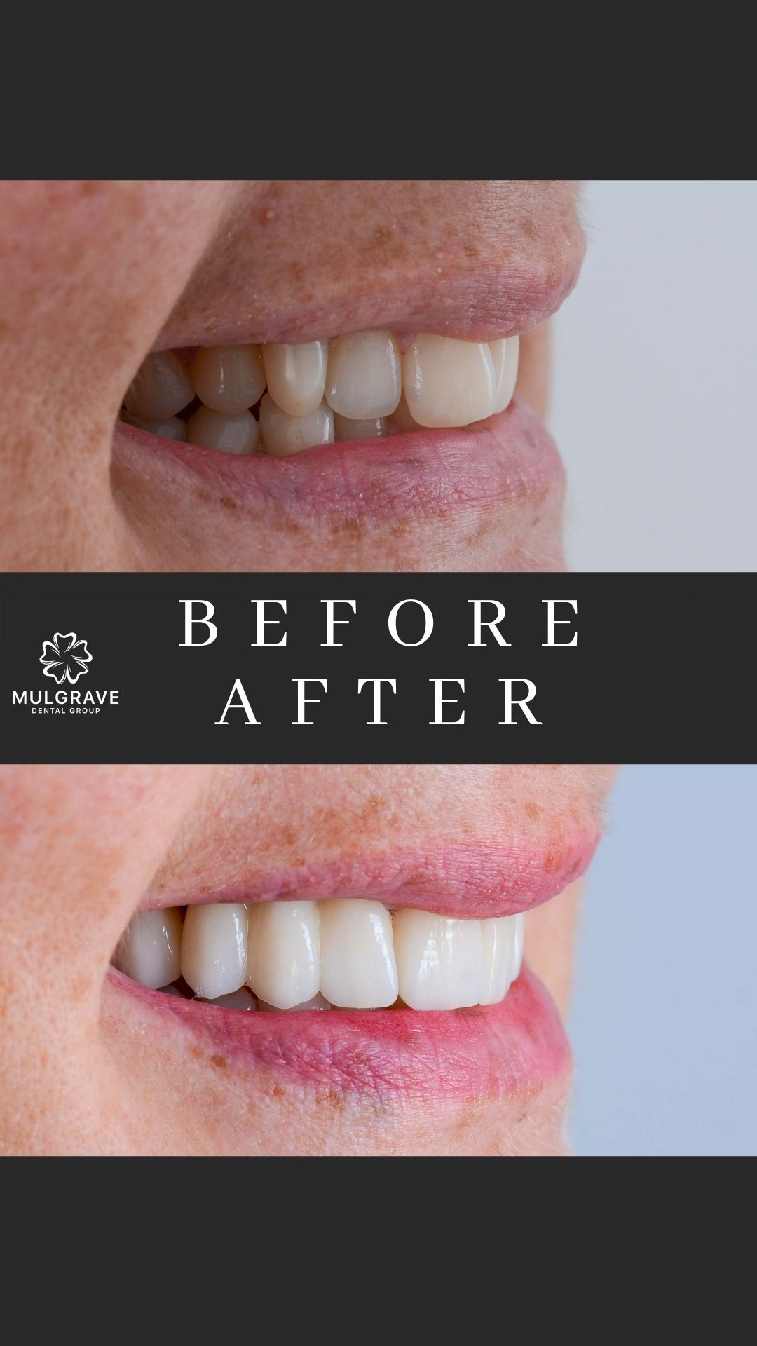 Melbourne Veneers Before and After VIC002