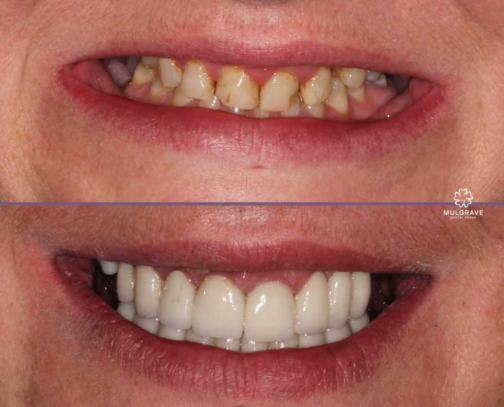 Top and bottom teeth veneers by Mulgrave Dental Group Melbourne Australia