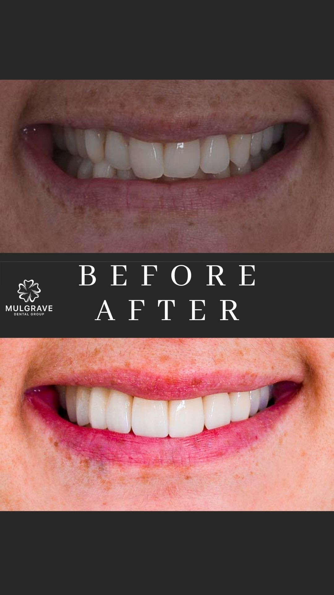 Veneers Melbourne Before and After VIC001-1
