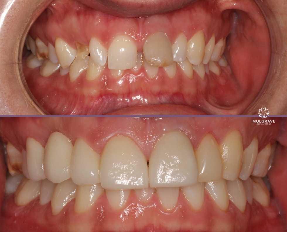 Veneers on top teeth by Mulgrave Dental Group Melbourne Australia