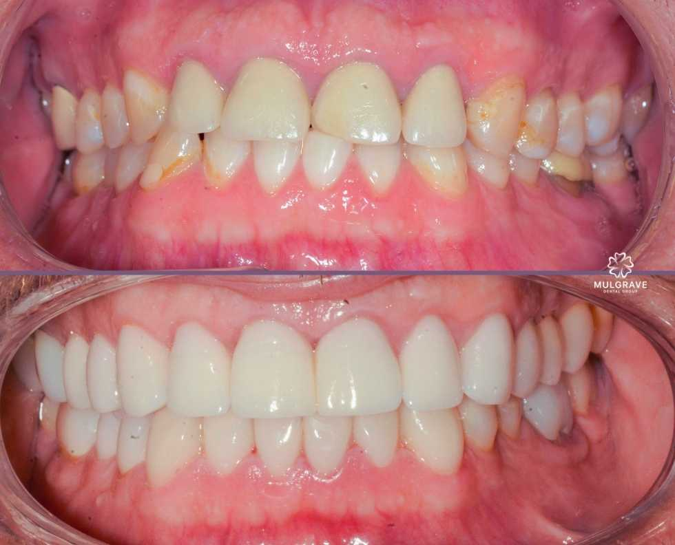 Venners and dental crown by Mulgrave Dental Group Melbourne Australia