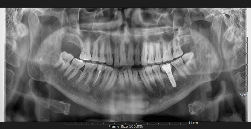 a radiograph of a single tooth dental implant
